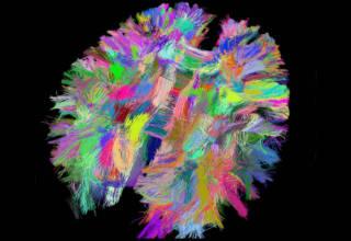 Les mystères du cerveau / ©A. Grigis/Universite de Strasbourg/CNRS Photothèque